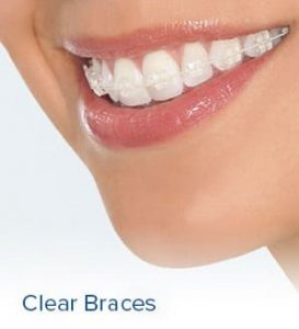 Clear Braces for Teeth Straightening By Santa Monica, Beverly Hills, and Los Angeles Orthodontist Dr. Nikaeen