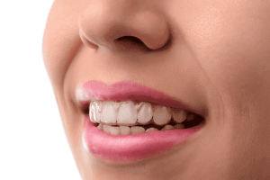 Invisalign Cost in Los Angeles, Santa Monica, and Beverly Hills